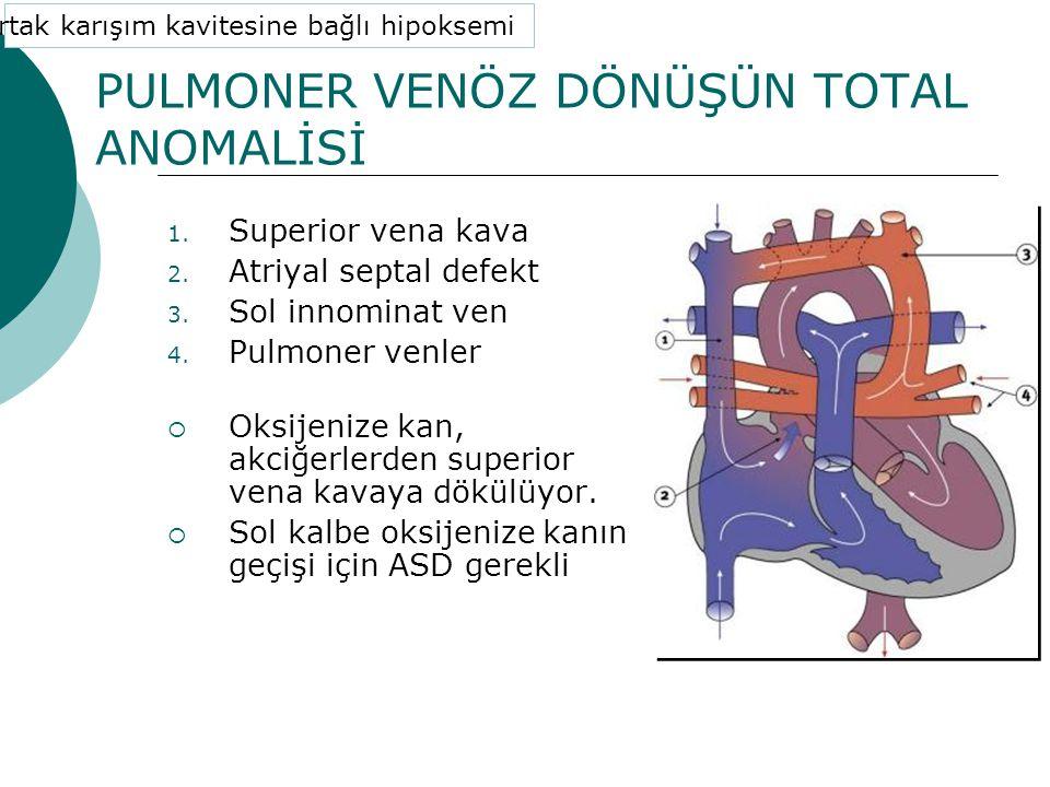PULMONER VENÖZ DÖNÜŞÜN TOTAL ANOMALİSİ 1.Superior vena kava 2.