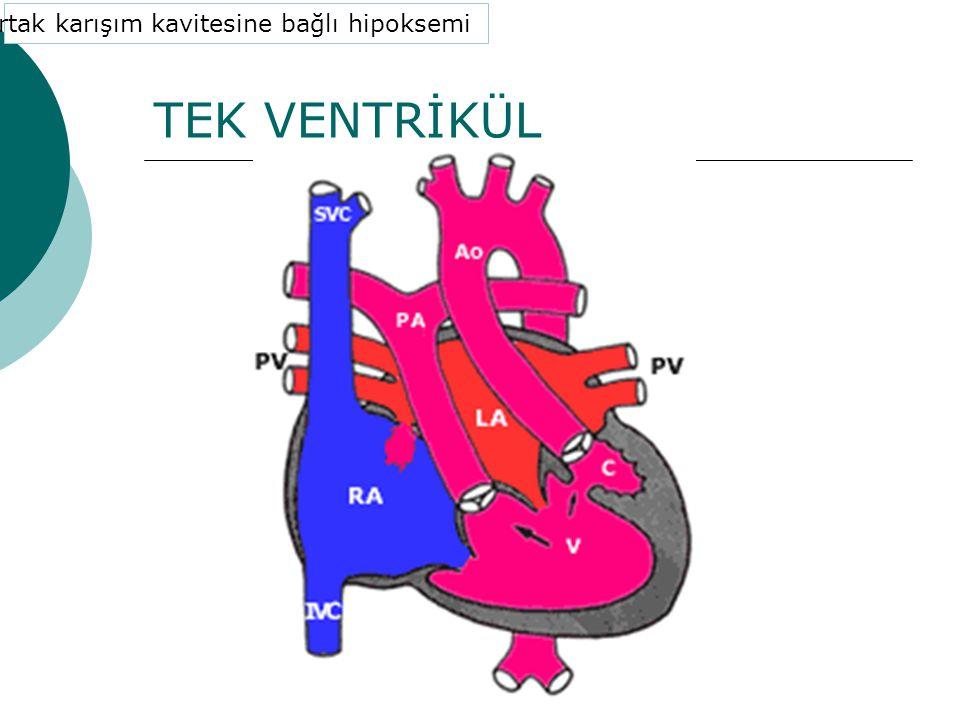 TEK VENTRİKÜL 4. Ortak karışım kavitesine bağlı hipoksemi