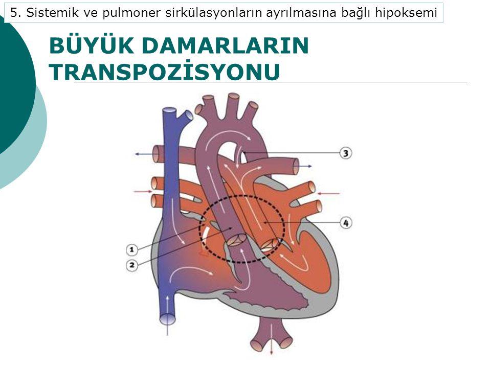 BÜYÜK DAMARLARIN TRANSPOZİSYONU 5.