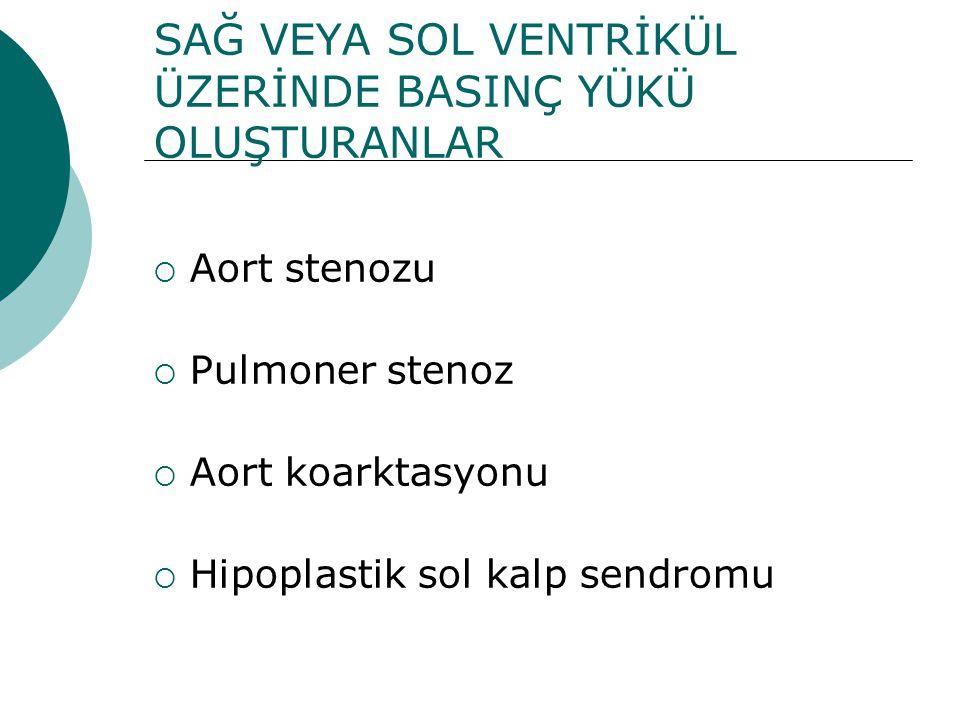 SAĞ VEYA SOL VENTRİKÜL ÜZERİNDE BASINÇ YÜKÜ OLUŞTURANLAR  Aort stenozu  Pulmoner stenoz  Aort koarktasyonu  Hipoplastik sol kalp sendromu
