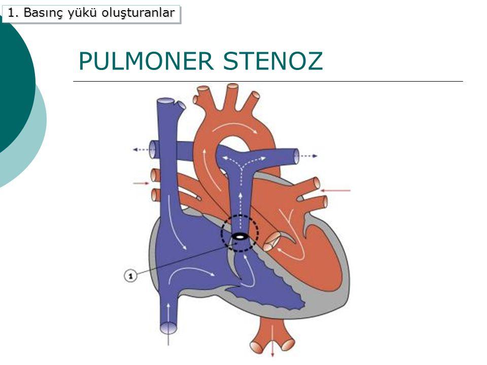 PULMONER STENOZ 1. Basınç yükü oluşturanlar