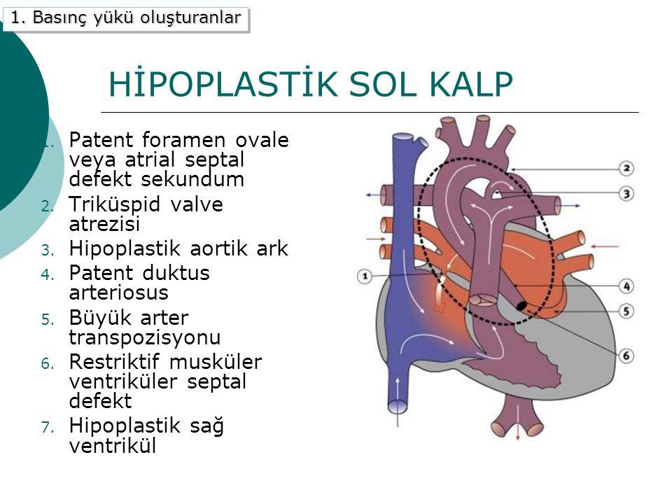 HİPOPLASTİK SOL KALP 1.Patent foramen ovale veya atrial septal defekt sekundum 2.
