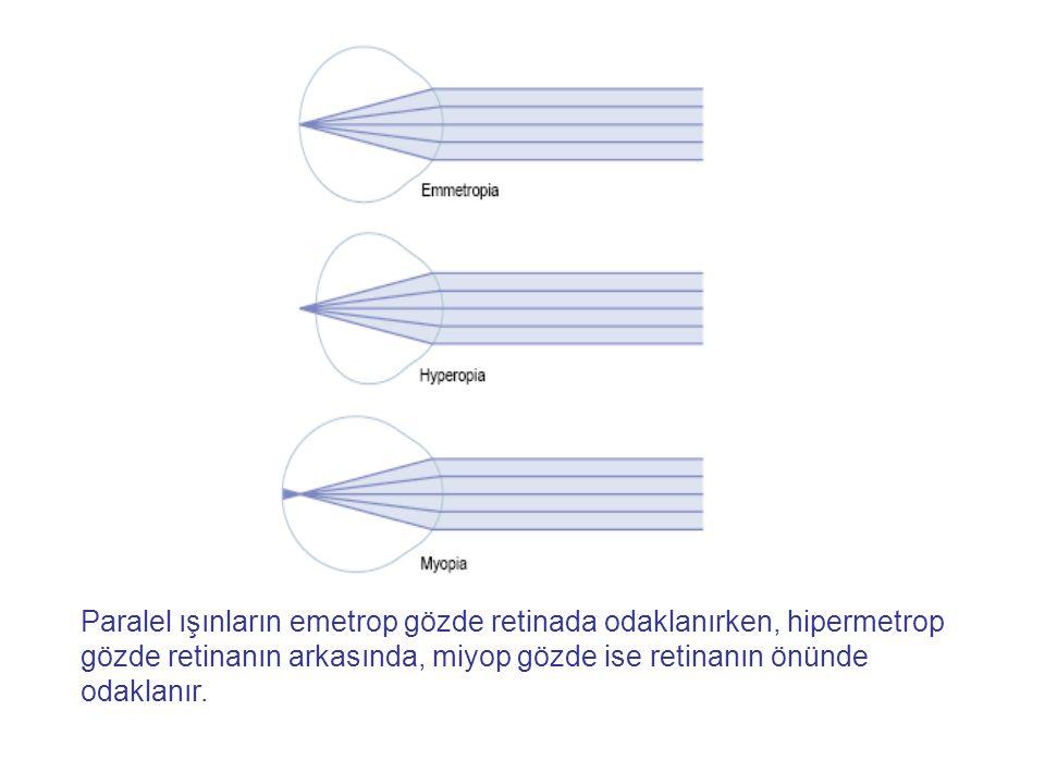 Paralel ışınların emetrop gözde retinada odaklanırken, hipermetrop gözde retinanın arkasında, miyop gözde ise retinanın önünde odaklanır.