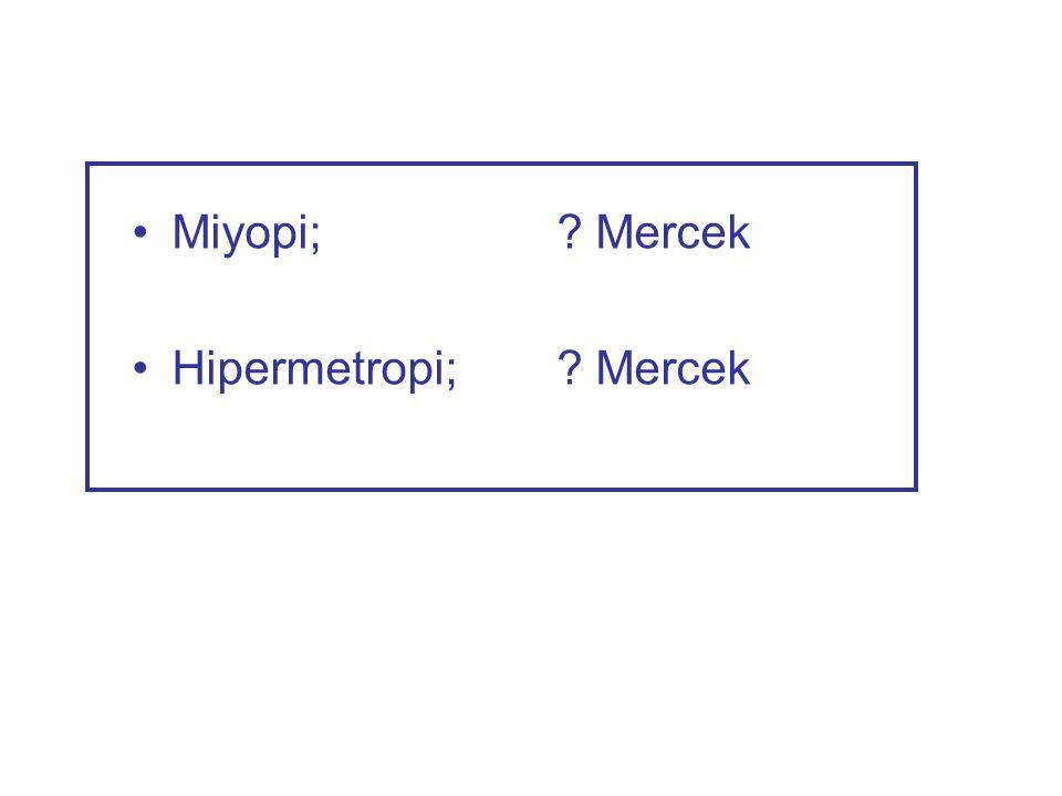 •Miyopi;? Mercek •Hipermetropi;? Mercek