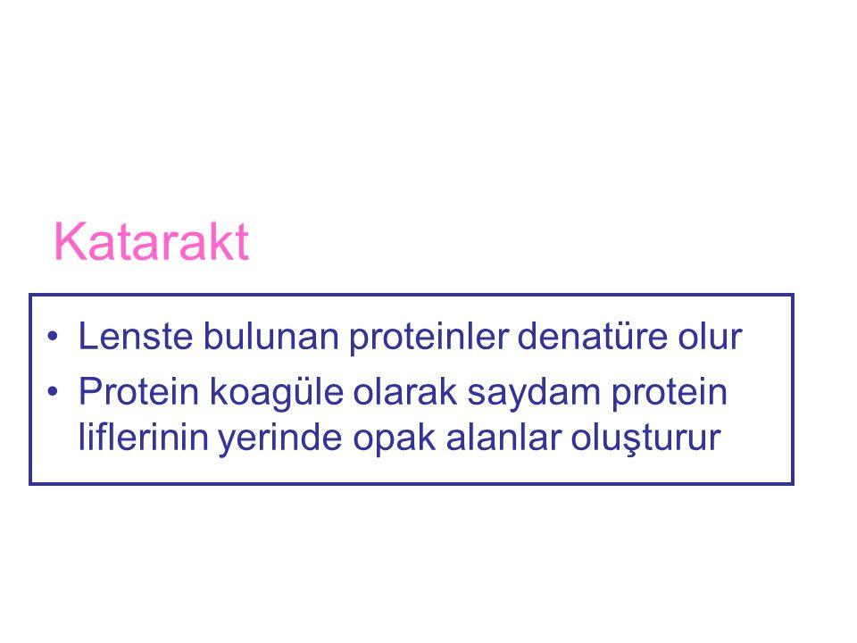 Katarakt •Lenste bulunan proteinler denatüre olur •Protein koagüle olarak saydam protein liflerinin yerinde opak alanlar oluşturur