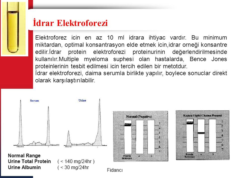 İdrar Elektroforezi Elektroforez icin en az 10 ml idrara ihtiyac vardır. Bu minimum miktardan, optimal konsantrasyon elde etmek icin,idrar orneği kons