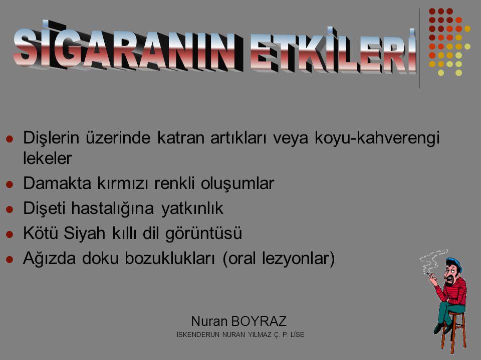 İSKENDERUN NURAN YILMAZ Ç. P. LİSE Nuran BOYRAZ