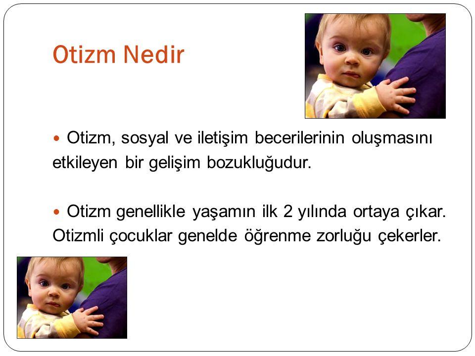  Konuşma özellikleri: Normal bebekler genellikle 1 yaş civarında ilk kelimelerini söylerler.