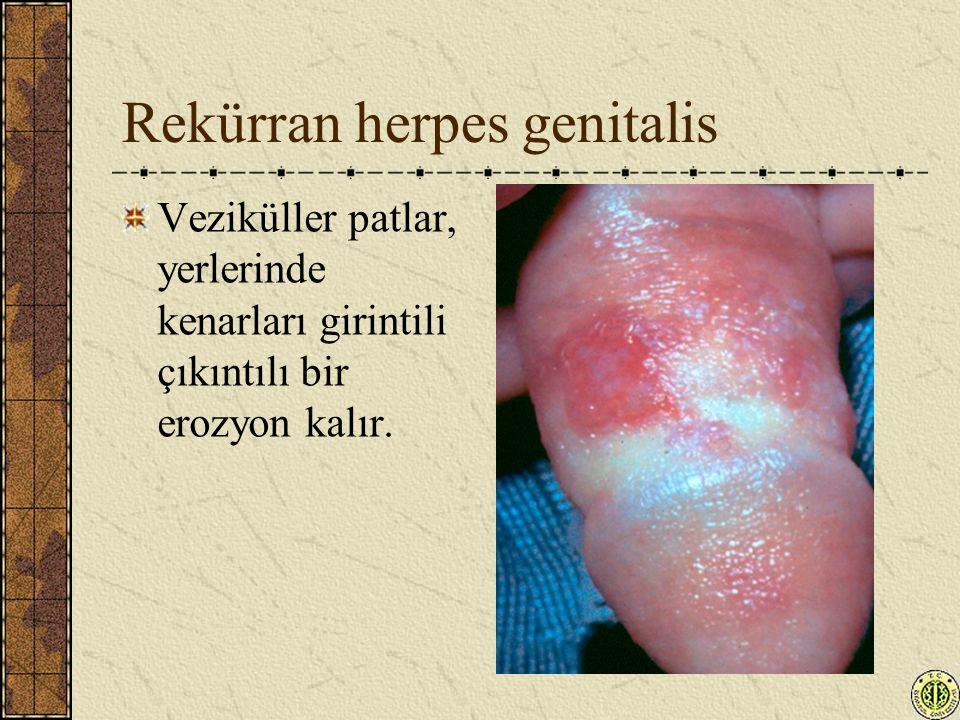 Rekürran herpes genitalis Veziküller patlar, yerlerinde kenarları girintili çıkıntılı bir erozyon kalır.