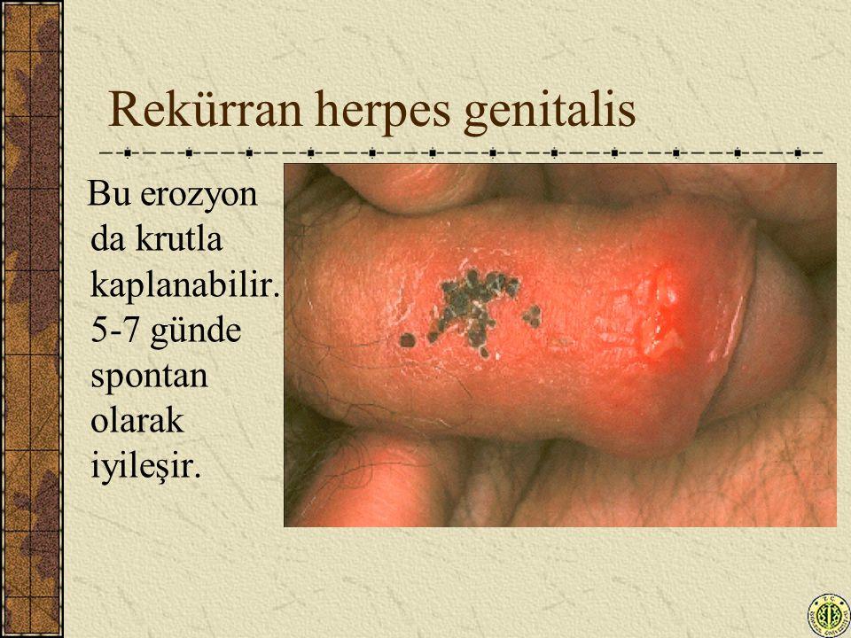 Rekürran herpes genitalis Bu erozyon da krutla kaplanabilir. 5-7 günde spontan olarak iyileşir.