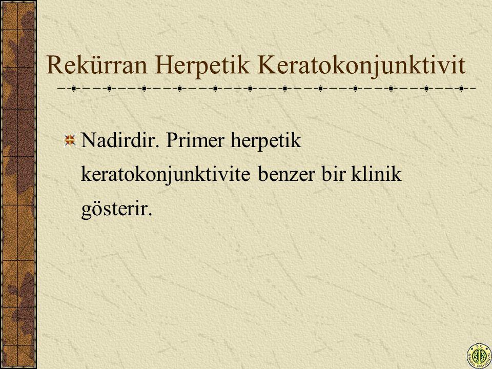 Rekürran Herpetik Keratokonjunktivit Nadirdir. Primer herpetik keratokonjunktivite benzer bir klinik gösterir.