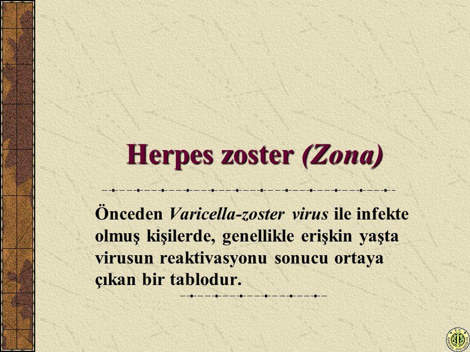 Herpes zoster (Zona) Önceden Varicella-zoster virus ile infekte olmuş kişilerde, genellikle erişkin yaşta virusun reaktivasyonu sonucu ortaya çıkan bi
