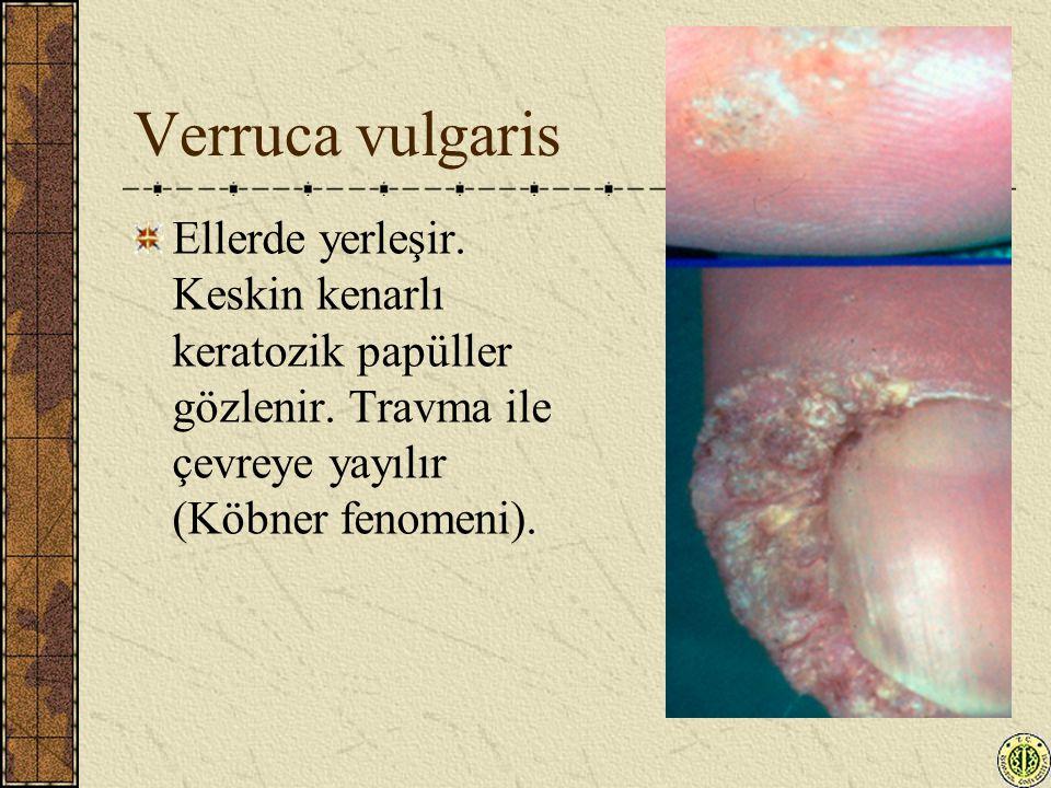 Verruca vulgaris Ellerde yerleşir. Keskin kenarlı keratozik papüller gözlenir. Travma ile çevreye yayılır (Köbner fenomeni).