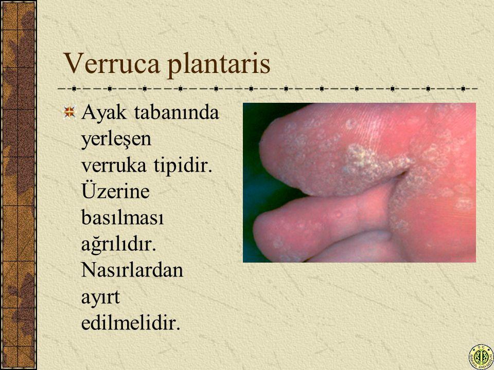 Verruca plantaris Ayak tabanında yerleşen verruka tipidir. Üzerine basılması ağrılıdır. Nasırlardan ayırt edilmelidir.