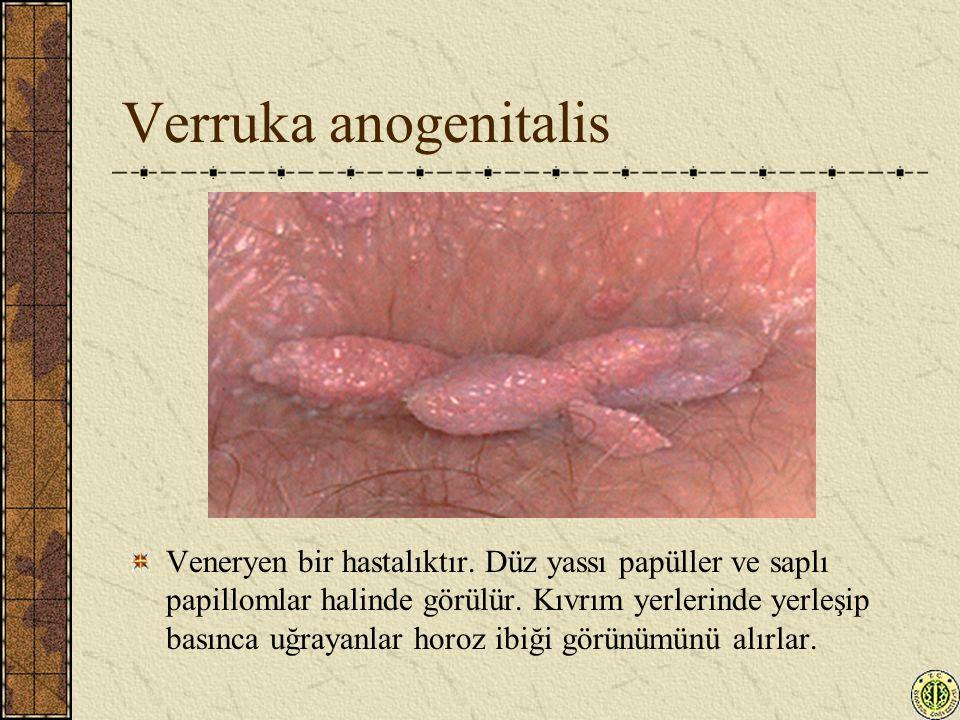 Verruka anogenitalis Veneryen bir hastalıktır. Düz yassı papüller ve saplı papillomlar halinde görülür. Kıvrım yerlerinde yerleşip basınca uğrayanlar