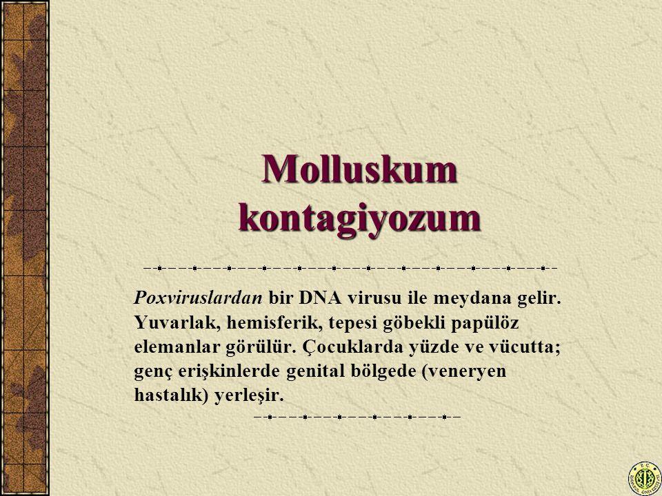Molluskum kontagiyozum Poxviruslardan bir DNA virusu ile meydana gelir. Yuvarlak, hemisferik, tepesi göbekli papülöz elemanlar görülür. Çocuklarda yüz