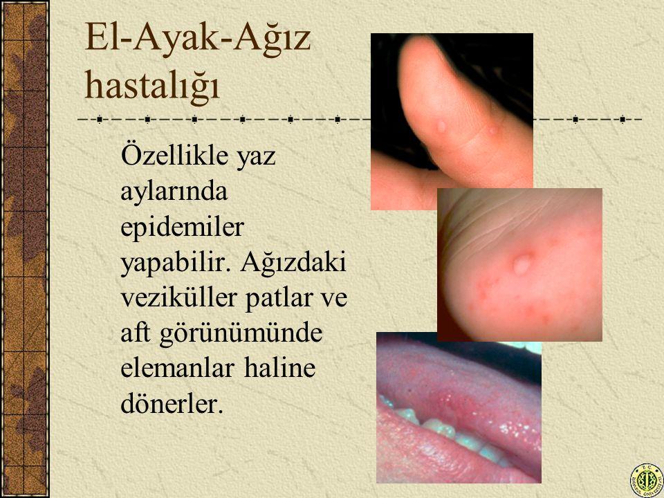 El-Ayak-Ağız hastalığı Özellikle yaz aylarında epidemiler yapabilir. Ağızdaki veziküller patlar ve aft görünümünde elemanlar haline dönerler.
