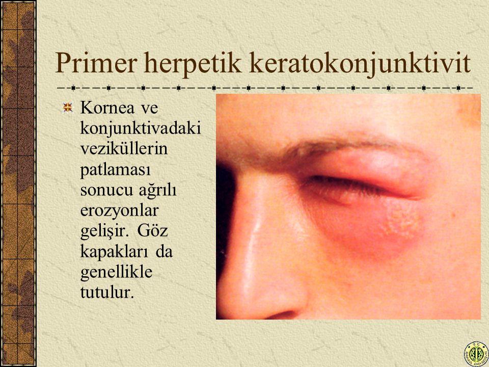 Primer herpetik keratokonjunktivit Kornea ve konjunktivadaki veziküllerin patlaması sonucu ağrılı erozyonlar gelişir. Göz kapakları da genellikle tutu