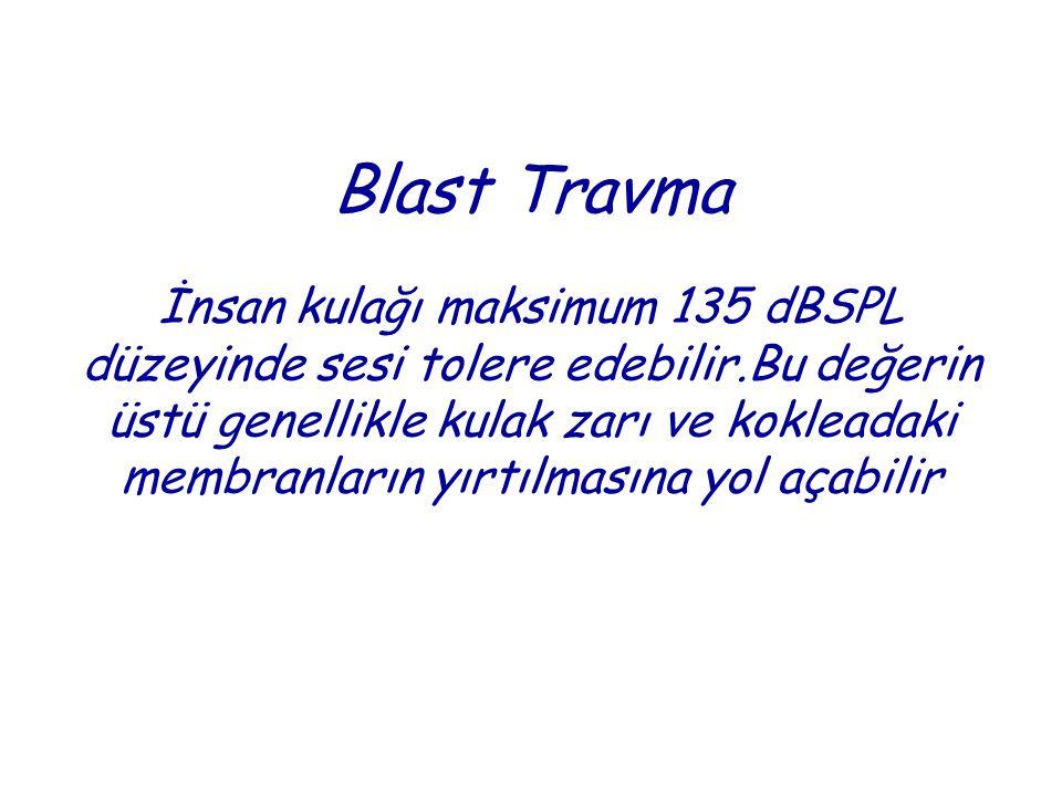Blast Travma İnsan kulağı maksimum 135 dBSPL düzeyinde sesi tolere edebilir.Bu değerin üstü genellikle kulak zarı ve kokleadaki membranların yırtılmasına yol açabilir
