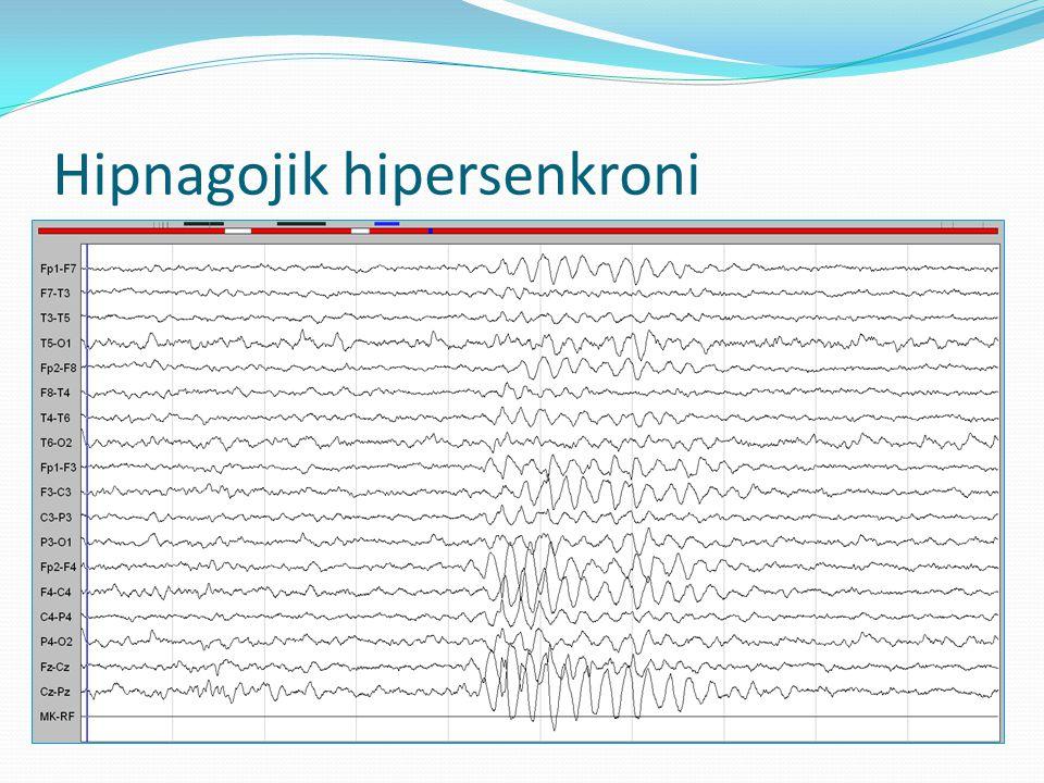Hipnagojik hipersenkroni