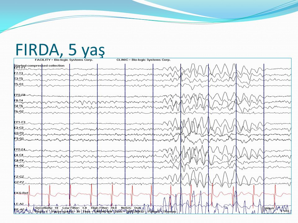  Intermittan ritmik delta aktivitesi  FIRDA  TIRDA  Diffüz yavaş aktivite