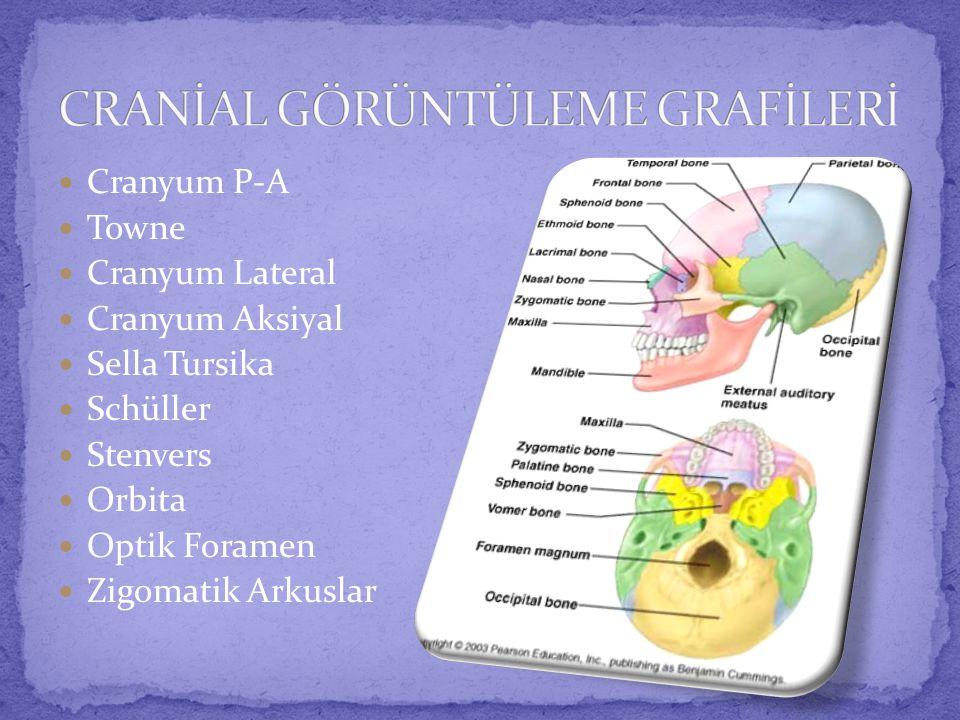  Cranyum P-A  Towne  Cranyum Lateral  Cranyum Aksiyal  Sella Tursika  Schüller  Stenvers  Orbita  Optik Foramen  Zigomatik Arkuslar