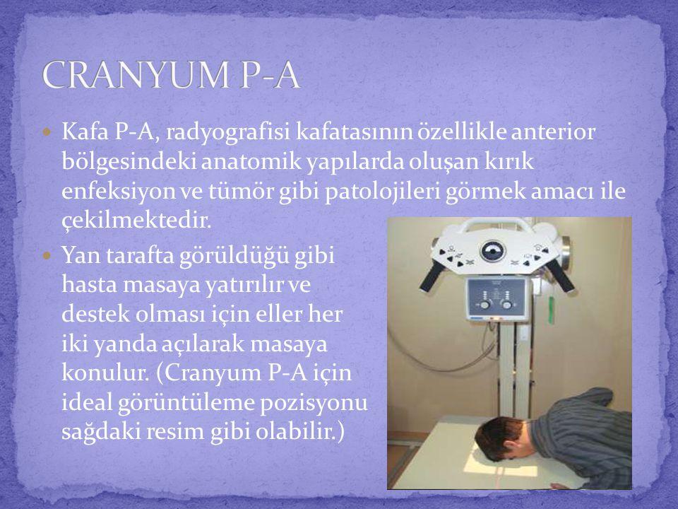  Kafa P-A, radyografisi kafatasının özellikle anterior bölgesindeki anatomik yapılarda oluşan kırık enfeksiyon ve tümör gibi patolojileri görmek amacı ile çekilmektedir.