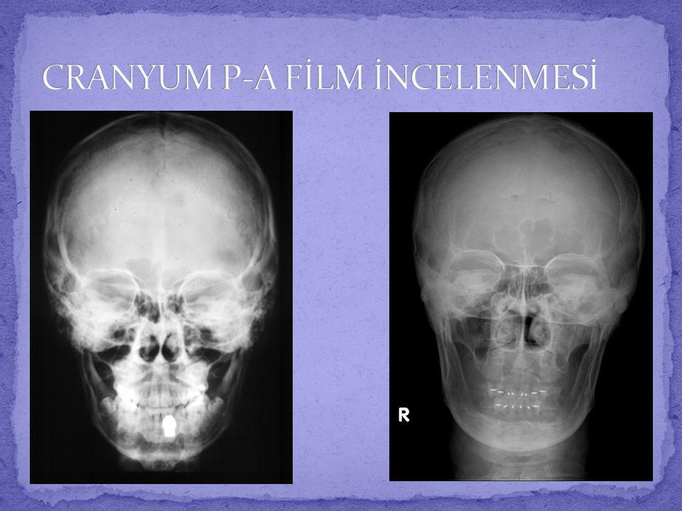  Bu pozisyonda anterior ve posterior klinoidler, dorsum sella, hipofizeal fossa ve sfenoid sinüs gibi anatomik yapıların görüntülenmesi amaçlanmaktadır.