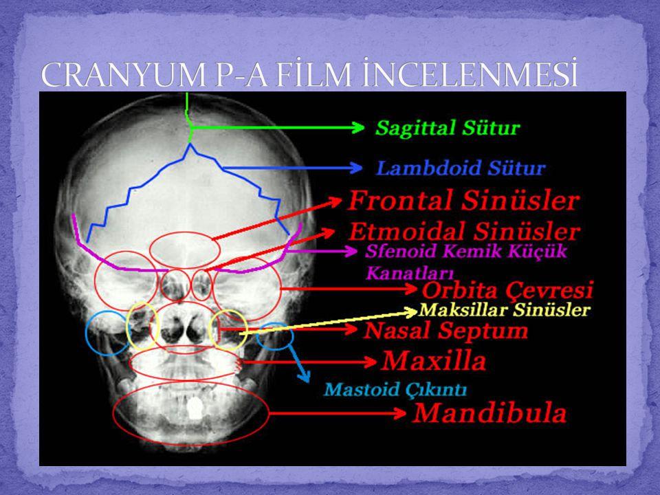  Hastanın kafa bölgesinin posterior kısmındaki kırıklar ve patolojik durumların incelenmesinde istenir.