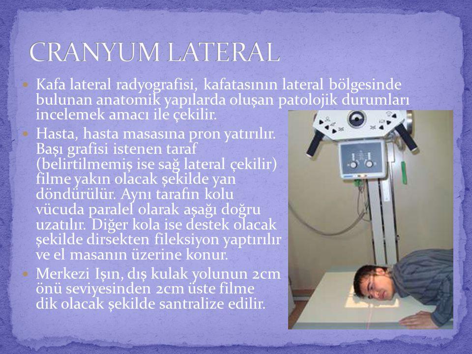  Kafa lateral radyografisi, kafatasının lateral bölgesinde bulunan anatomik yapılarda oluşan patolojik durumları incelemek amacı ile çekilir.
