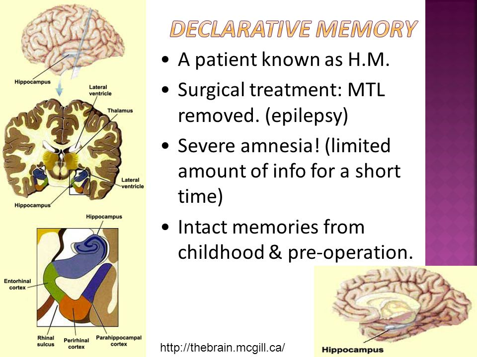 http://thebrain.mcgill.ca/ •A patient known as H.M. •Surgical treatment: MTL removed. (epilepsy) •Severe amnesia! (limited amount of info for a short
