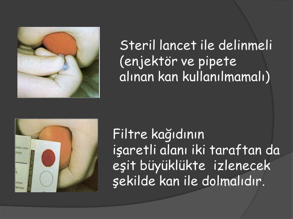 Steril lancet ile delinmeli (enjektör ve pipete alınan kan kullanılmamalı) Filtre kağıdının işaretli alanı iki taraftan da eşit büyüklükte izlenecek ş