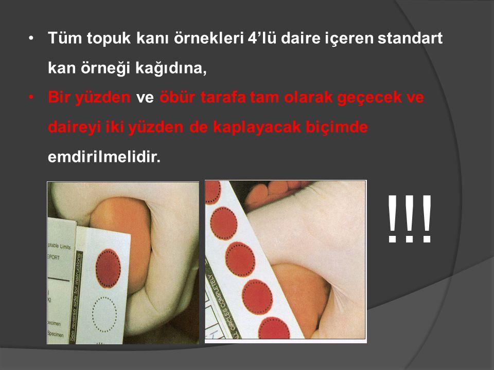 •Tüm topuk kanı örnekleri 4'lü daire içeren standart kan örneği kağıdına, •Bir yüzden ve öbür tarafa tam olarak geçecek ve daireyi iki yüzden de kaplayacak biçimde emdirilmelidir.