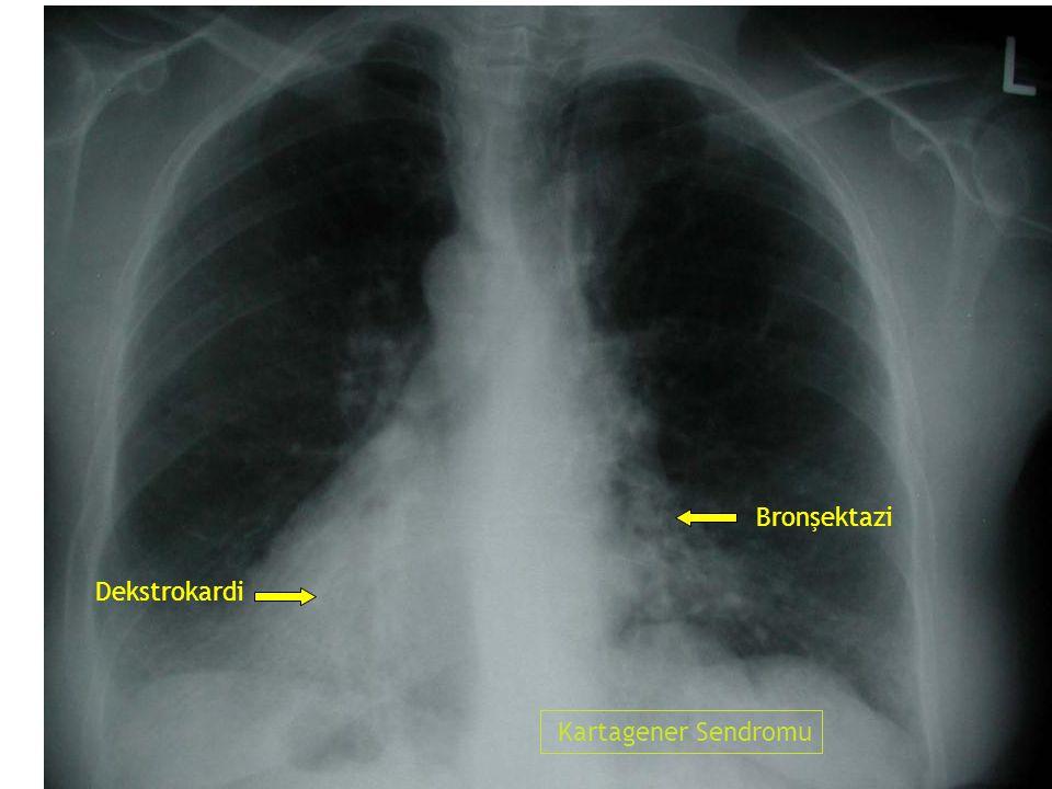 Bronşektazi Dekstrokardi Kartagener Sendromu