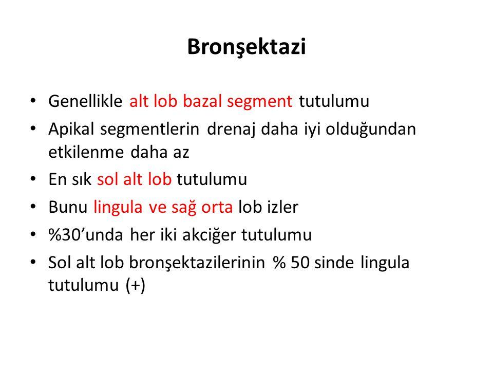 1-MEDİKAL TEDAVİ 1-Altta yatan nedenin tedavisi  Endobronşial tümör: Rezeksiyon  Yabancı cisim: Bronkoskopik olarak çıkartma  Hipogamaglobulinemi: Replasman  Allerjik pulmoner aspergillozis: Steroid tedavisi ve serum IgE düzeyi takibi