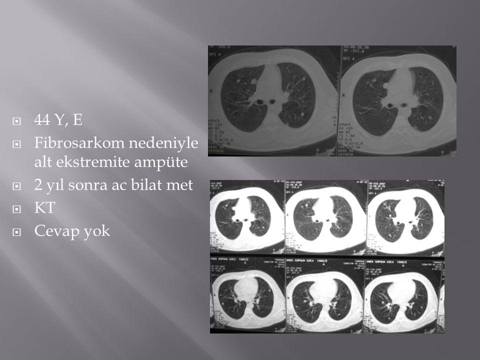  44 Y, E  Fibrosarkom nedeniyle alt ekstremite ampüte  2 yıl sonra ac bilat met  KT  Cevap yok