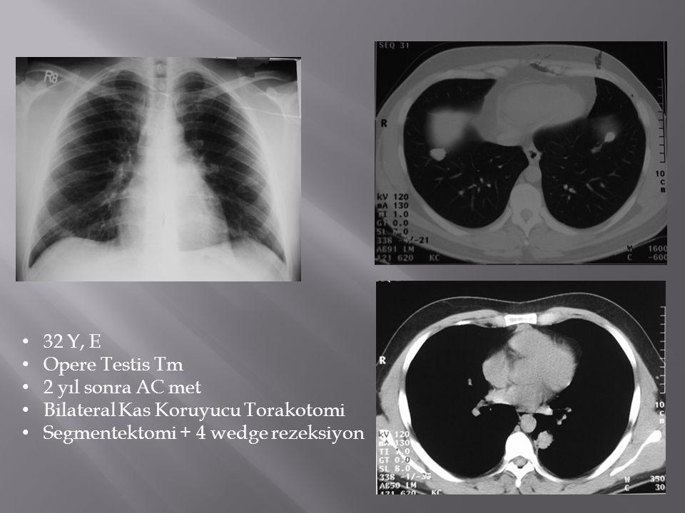 • 32 Y, E • Opere Testis Tm • 2 yıl sonra AC met • Bilateral Kas Koruyucu Torakotomi • Segmentektomi + 4 wedge rezeksiyon