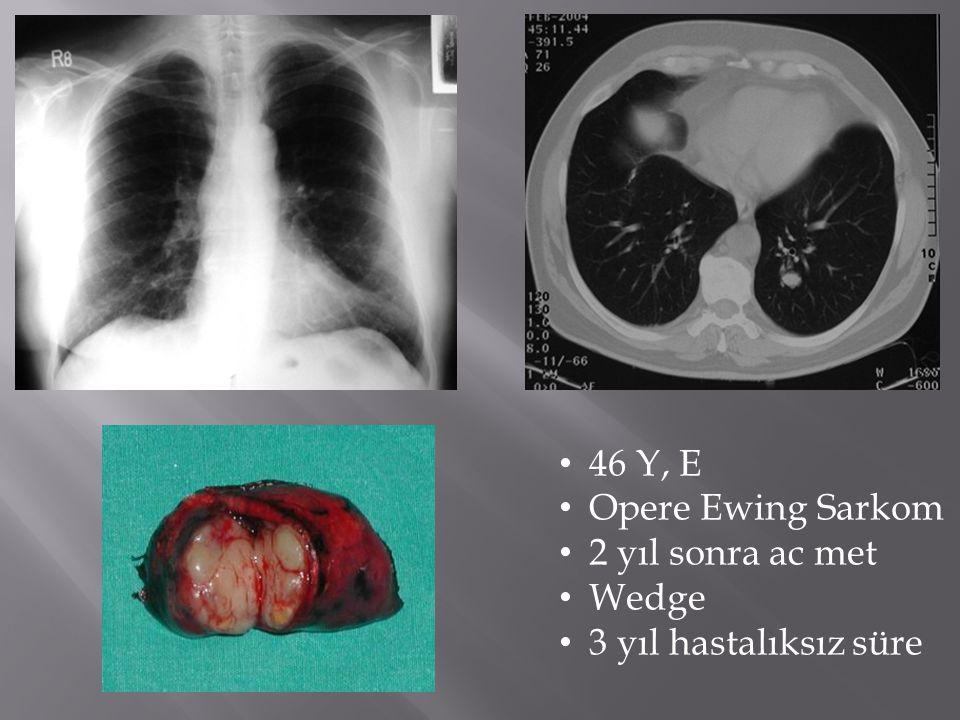 • 46 Y, E • Opere Ewing Sarkom • 2 yıl sonra ac met • Wedge • 3 yıl hastalıksız süre