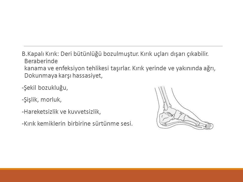 B.Kapalı Kırık: Deri bütünlüğü bozulmuştur. Kırık uçları dışarı çıkabilir. Beraberinde kanama ve enfeksiyon tehlikesi taşırlar. Kırık yerinde ve yakın