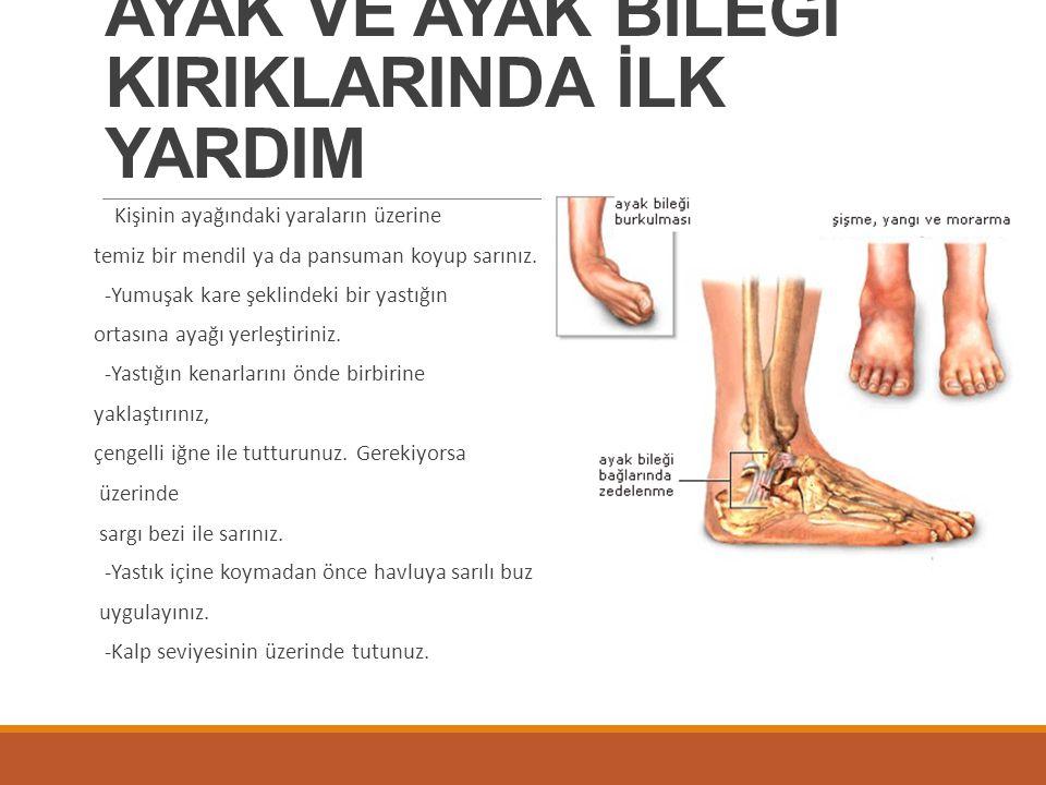 AYAK VE AYAK BİLEĞİ KIRIKLARINDA İLK YARDIM Kişinin ayağındaki yaraların üzerine temiz bir mendil ya da pansuman koyup sarınız. -Yumuşak kare şeklinde
