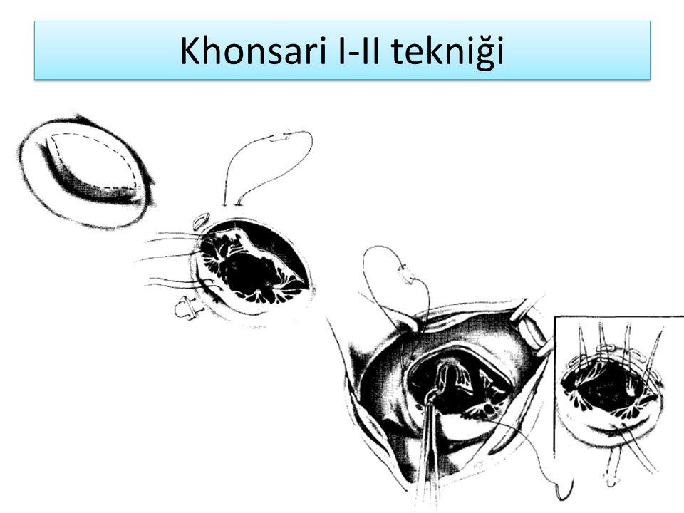 Khonsari I-II tekniği