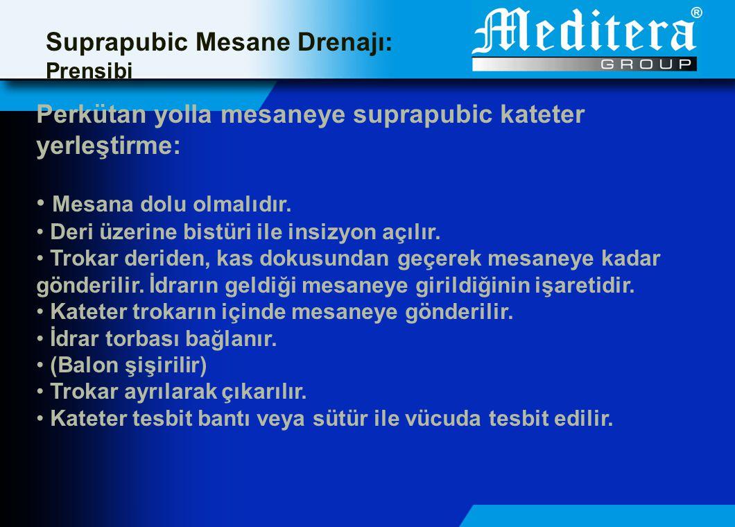 Suprapubic Mesane Drenajı: Prensibi Perkütan yolla mesaneye suprapubic kateter yerleştirme: • Mesana dolu olmalıdır.