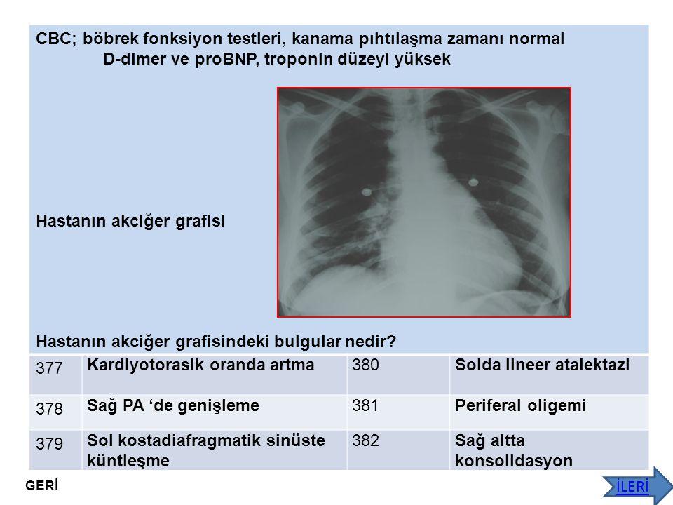 CBC; böbrek fonksiyon testleri, kanama pıhtılaşma zamanı normal D-dimer ve proBNP, troponin düzeyi yüksek Hastanın akciğer grafisi Hastanın akciğer gr