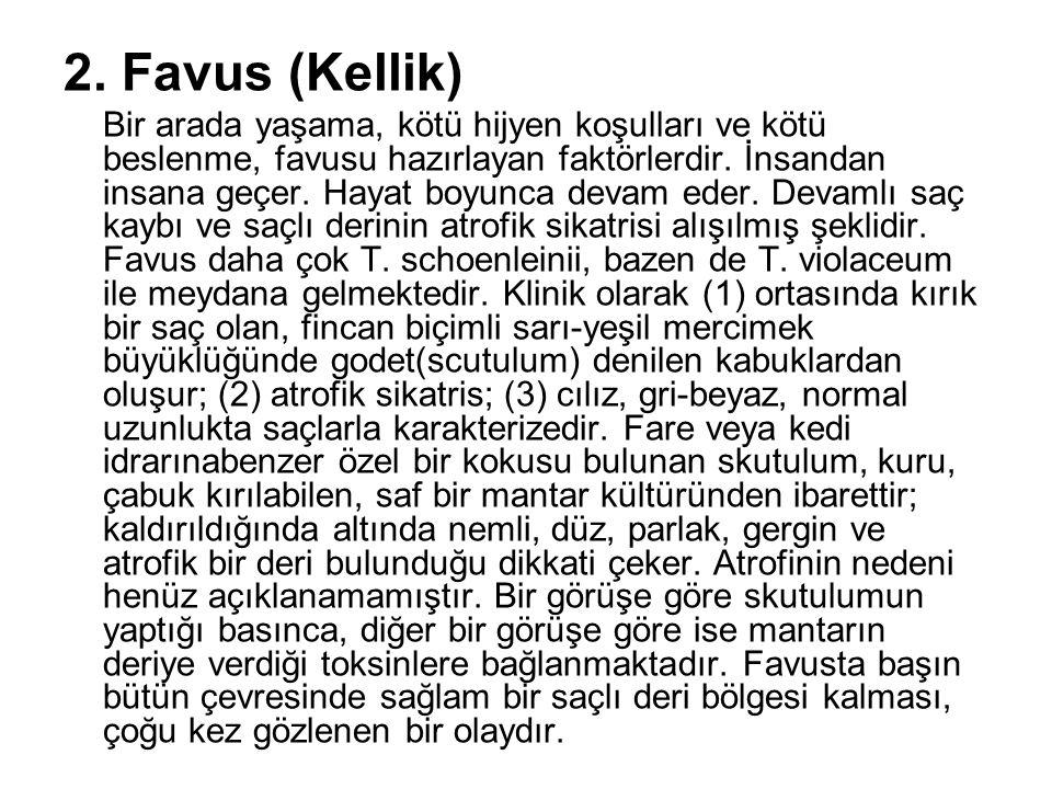 2. Favus (Kellik) Bir arada yaşama, kötü hijyen koşulları ve kötü beslenme, favusu hazırlayan faktörlerdir. İnsandan insana geçer. Hayat boyunca devam