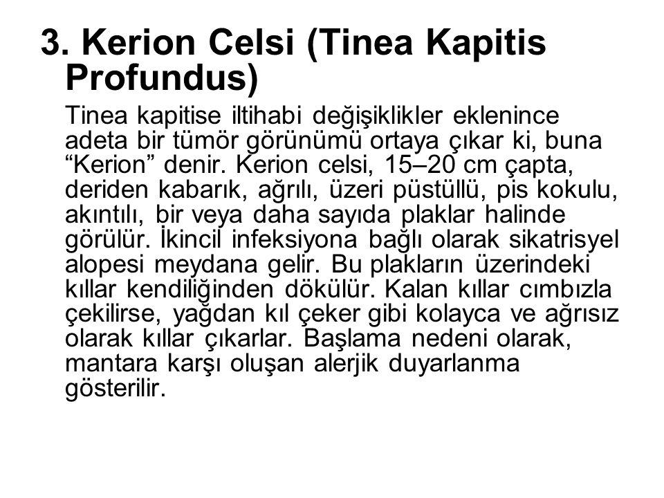 """3. Kerion Celsi (Tinea Kapitis Profundus) Tinea kapitise iltihabi değişiklikler eklenince adeta bir tümör görünümü ortaya çıkar ki, buna """"Kerion"""" deni"""
