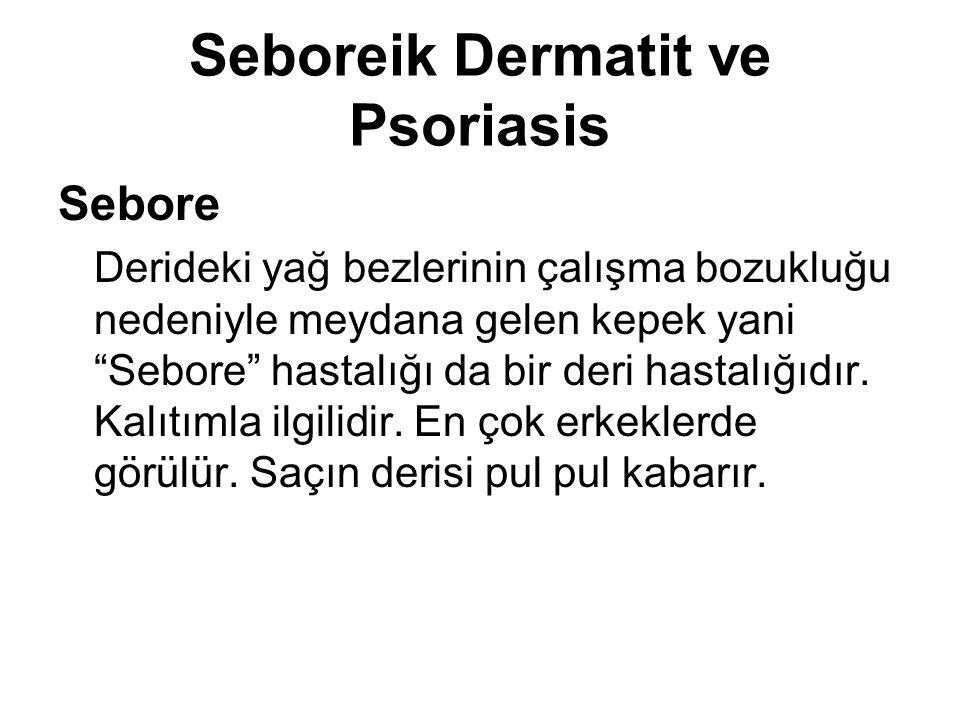 """Seboreik Dermatit ve Psoriasis Sebore Derideki yağ bezlerinin çalışma bozukluğu nedeniyle meydana gelen kepek yani """"Sebore"""" hastalığı da bir deri hast"""