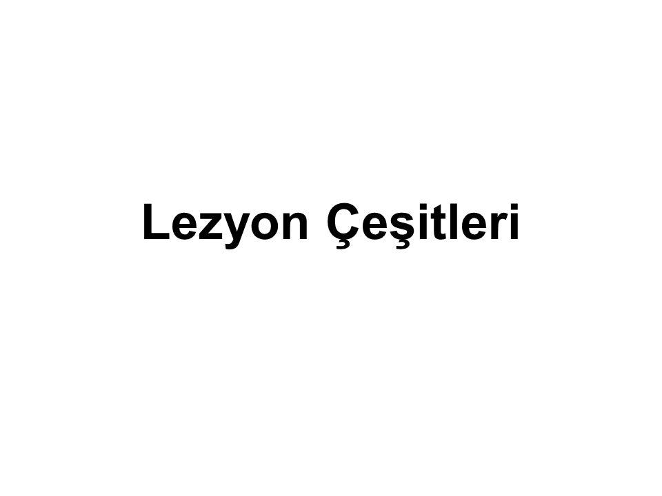Lezyon Çeşitleri