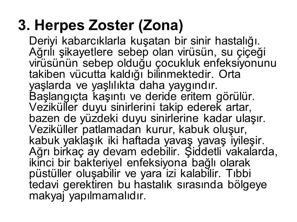 3. Herpes Zoster (Zona) Deriyi kabarcıklarla kuşatan bir sinir hastalığı. Ağrılı şikayetlere sebep olan virüsün, su çiçeği virüsünün sebep olduğu çocu