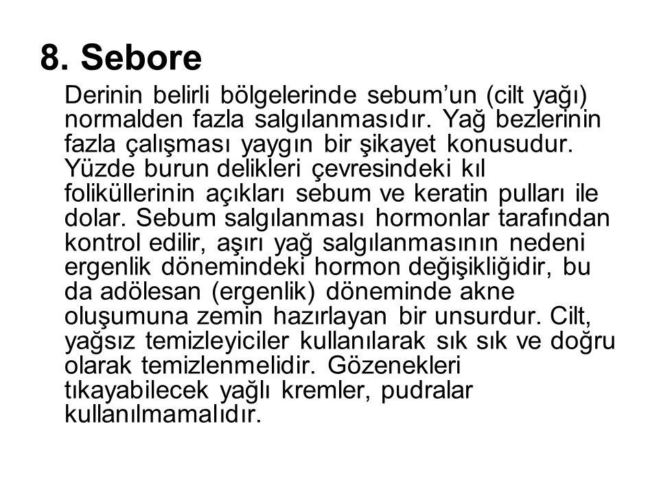 8. Sebore Derinin belirli bölgelerinde sebum'un (cilt yağı) normalden fazla salgılanmasıdır. Yağ bezlerinin fazla çalışması yaygın bir şikayet konusud