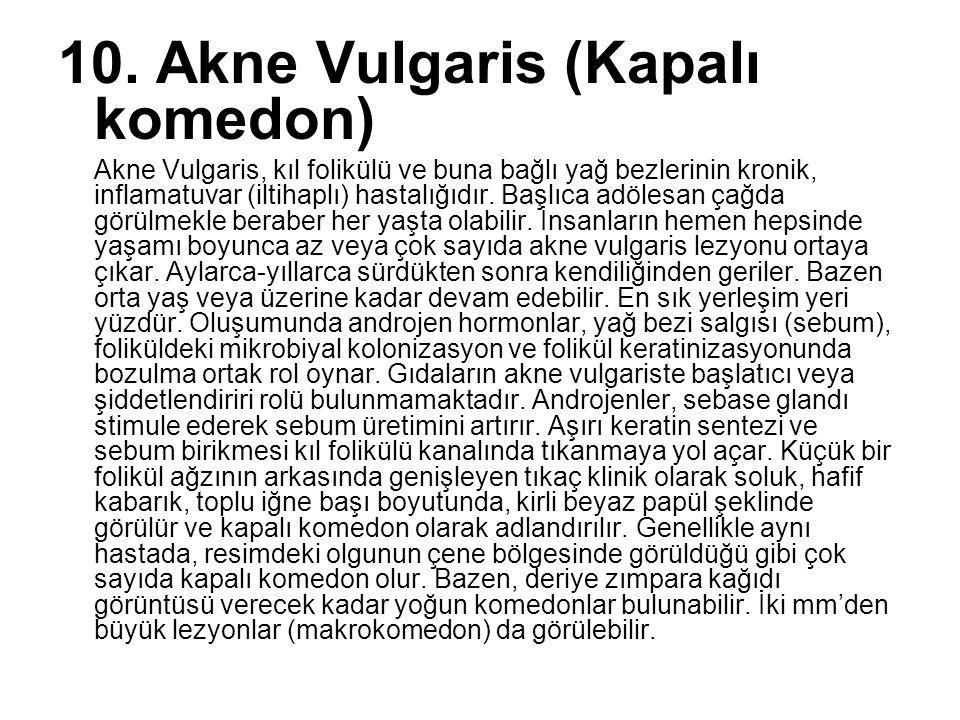 10. Akne Vulgaris (Kapalı komedon) Akne Vulgaris, kıl folikülü ve buna bağlı yağ bezlerinin kronik, inflamatuvar (iltihaplı) hastalığıdır. Başlıca adö